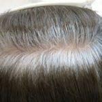白髪になる原因が分かれば、増やさないようにすることもできます