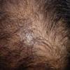 頭皮が赤い方は頭皮だけが原因でないこともあります